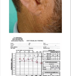 right auricula and right external ear canal after therapy  [ 715 x 1531 Pixel ]