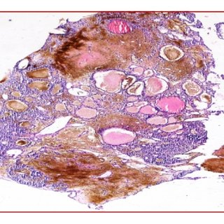 Dilated blood vessels and cells clusters with clear ...