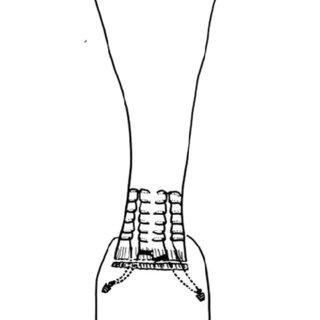 (PDF) Suture anchor tenodesis in repair of distal Achilles