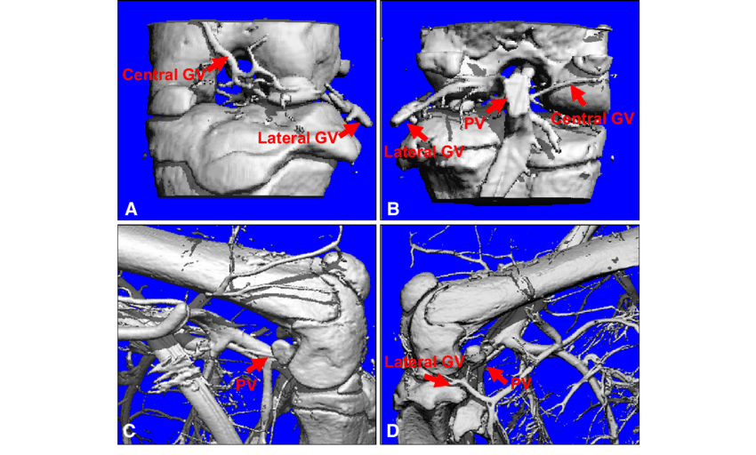 vascular anatomy diagram lower poulan fuel line a d microangiography was used to define the around knee vessels were observed by perfusion of limb vasculature with microfil