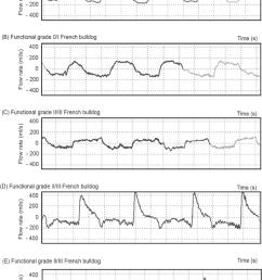 representative wbbp flow waveforms for several study dogs a non brachycephalic control [ 850 x 1172 Pixel ]