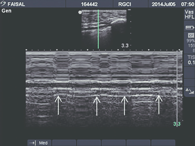 Lung pulse (arrows shows transmitted heart pulsations ...