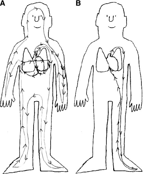 Comparison of pretest and posttest drawings by a typical