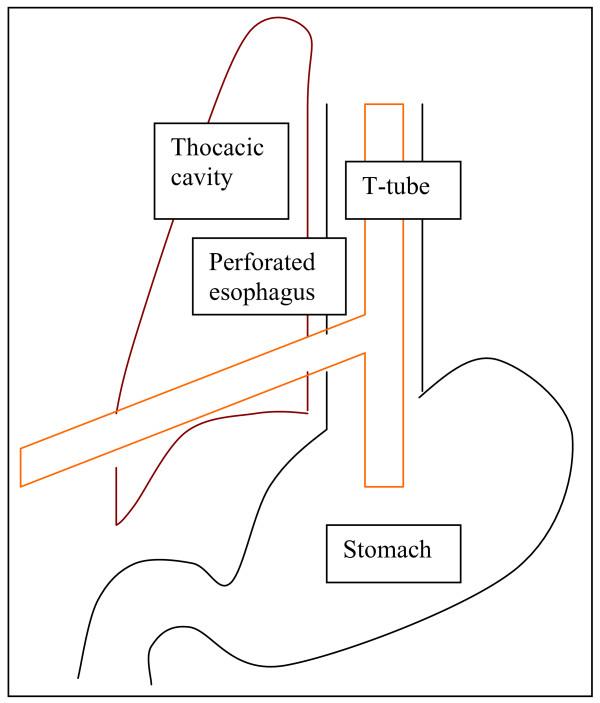 GI Perforation