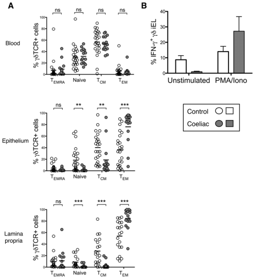 small resolution of  t cells from the coeliac small intestine display a functional download scientific diagram