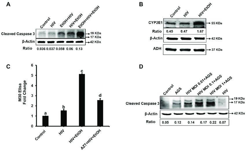 Human immunodefeciency virus (HIV) and ethanol induce