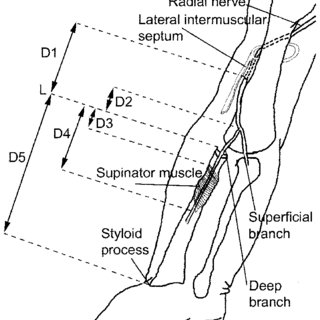(PDF) The course and branching pattern of the deep branch
