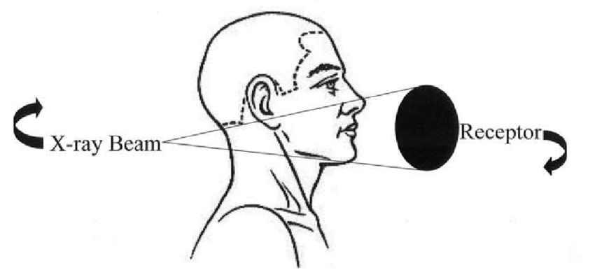 Cone-beam CT-a cone-shaped x-ray beam rotates around a