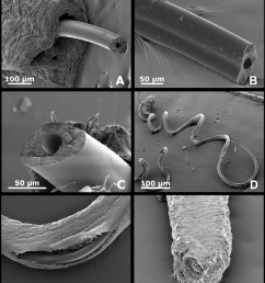 a penis showing the external cuticule and internal chitinous stylet macn in 36985 b and c detail of the tranverse section of  [ 850 x 996 Pixel ]