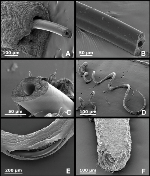 small resolution of a penis showing the external cuticule and internal chitinous stylet macn in 36985 b and c detail of the tranverse section of