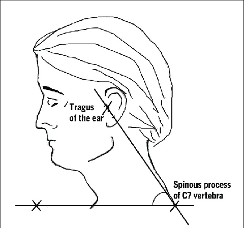 Measurement of craniocervical angle or forward head