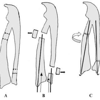 (PDF) Derotational osteotomy of the proximal radius and