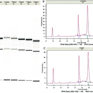 Quantitation of the purity of the RNA samples. Agilent