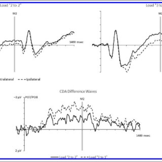 (PDF) Does Contralateral Delay Activity Reflect Working