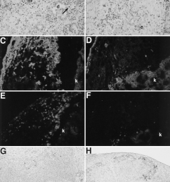 comparison of fetal pig pancreas grafts 4 days after transplantation download scientific diagram [ 850 x 1095 Pixel ]