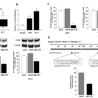 miR-1285 directly regulates TGM2 in RCC cells. (A