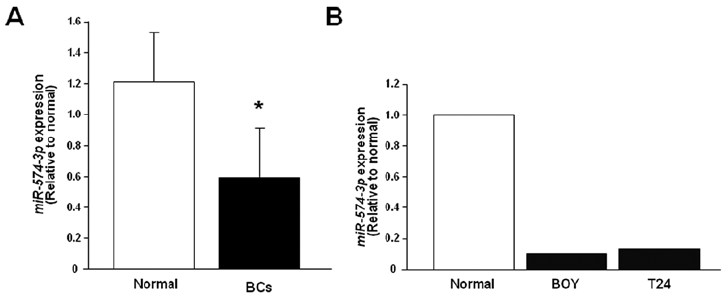 MiR-574-3p expression levels in (A) clinical BCs and (B
