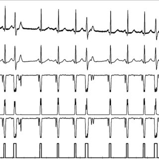 (PDF) Comparative study of QRS detection in single lead