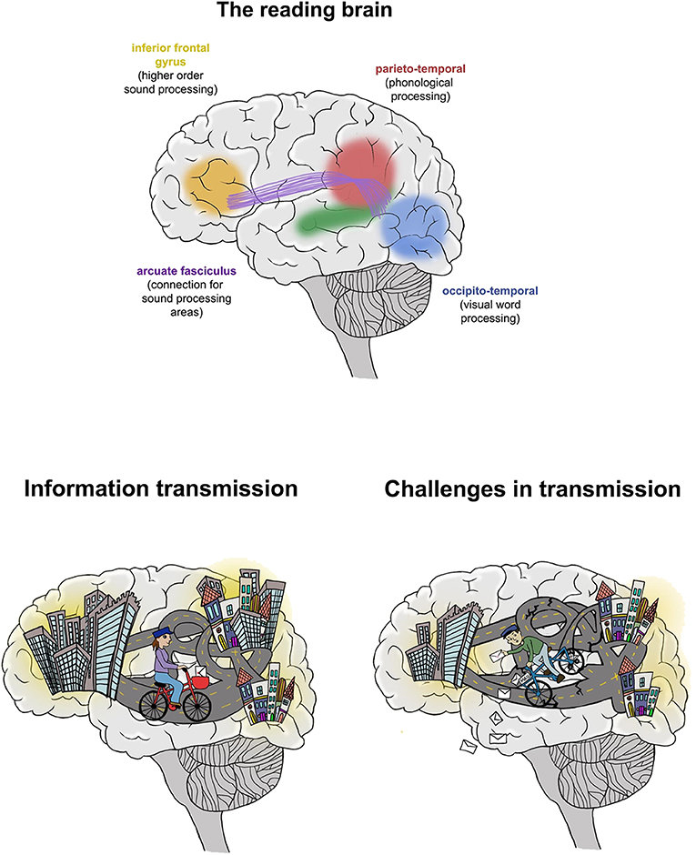 -The reading brain,