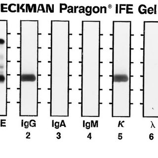 Immunofixation performed with the Paragon kit (see