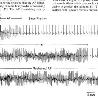 (PDF) Atrial Remodeling and Novel Pharmacological
