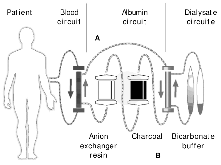 Schematic of the functional mechanism of MARS. A. Dialysis