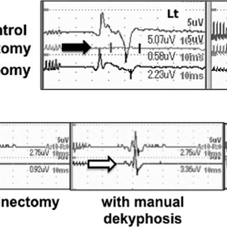 (PDF) Intraoperative Neurological Deterioration Secondary