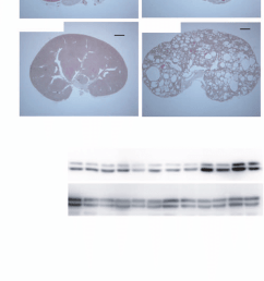 renal cyst development and erk activation in inv c mice  [ 850 x 2116 Pixel ]