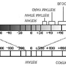 Hounsfield Unit scale | Download Scientific Diagram