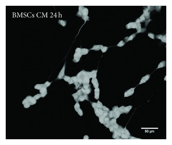 Quantitative analysis of SH-SY5Y neurite outgrowth seven