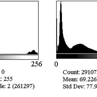 mageJ histograms of X-ray CT abnormal brain scans. (a