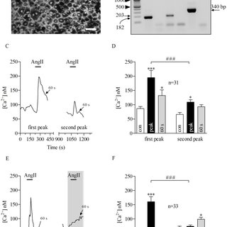 (PDF) Angiotensin-2-Mediated Ca2+ Signaling in the Retinal