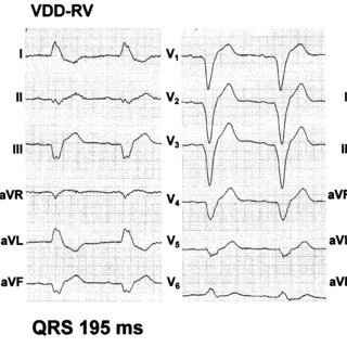 12-lead ECG in a patient with left-bundle branch block and