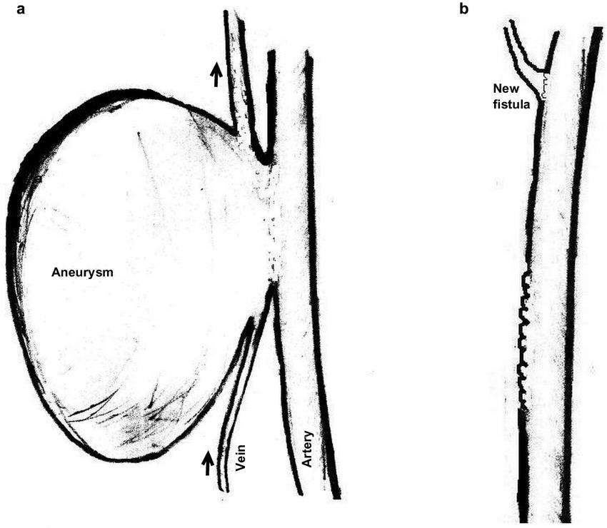 AV fistula aneurysm repair-a) the aneurysm as was ...