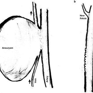 (PDF) Surgical management of aneurysms of arteriovenous ...