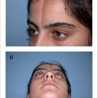 (PDF) Treatment of Linear Scleroderma (en Coup de Sabre ...