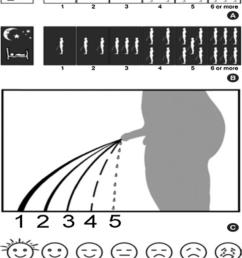 visual prostate symptoms score 8  [ 850 x 1177 Pixel ]