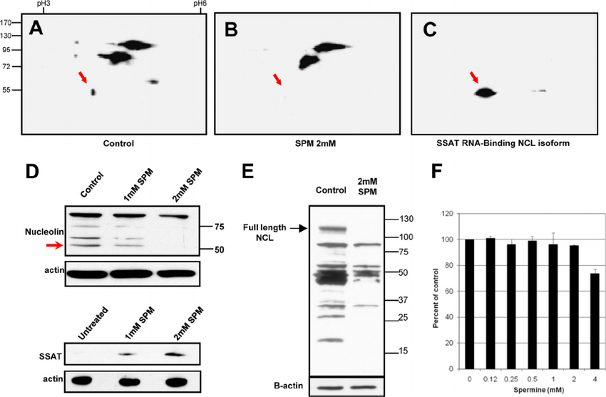 Exogenous spermine reduces 55-kDa nucleolin isoform. 2D