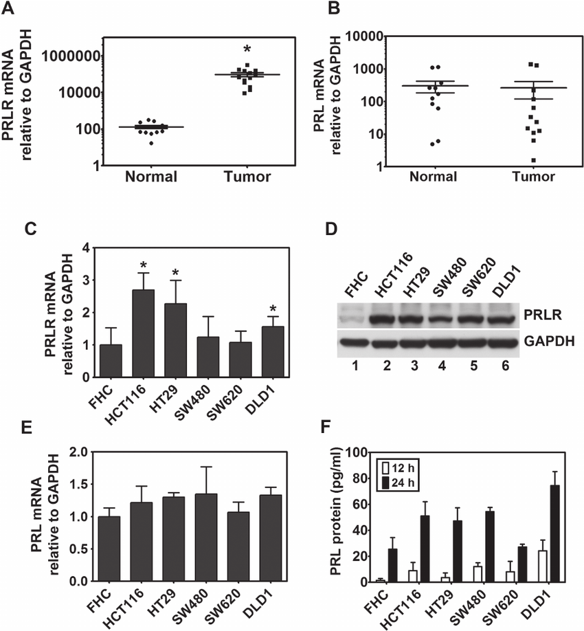 Expression of PRL and its cognate receptor in colorectal