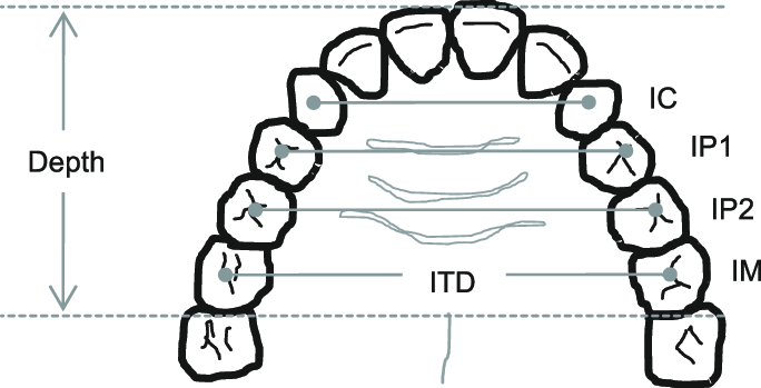 Schematic diagram of dental arch illustrating the linear