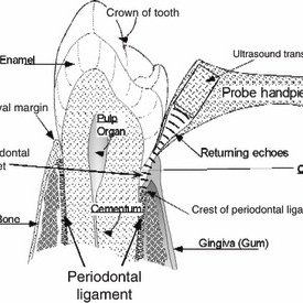 (PDF) New developments in tools for periodontal diagnosis