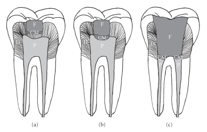 Vital pulp therapy. (a) Indirect pulp capping; (b) direct