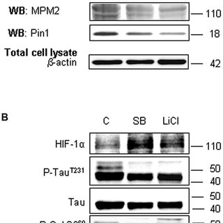 HIF-1α protein levels increases in parallel to a decrease