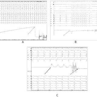 A: Coronary angiography performed with the ablating