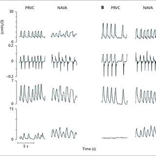 (PDF) Neurally Adjusted Ventilatory Assist in Preterm