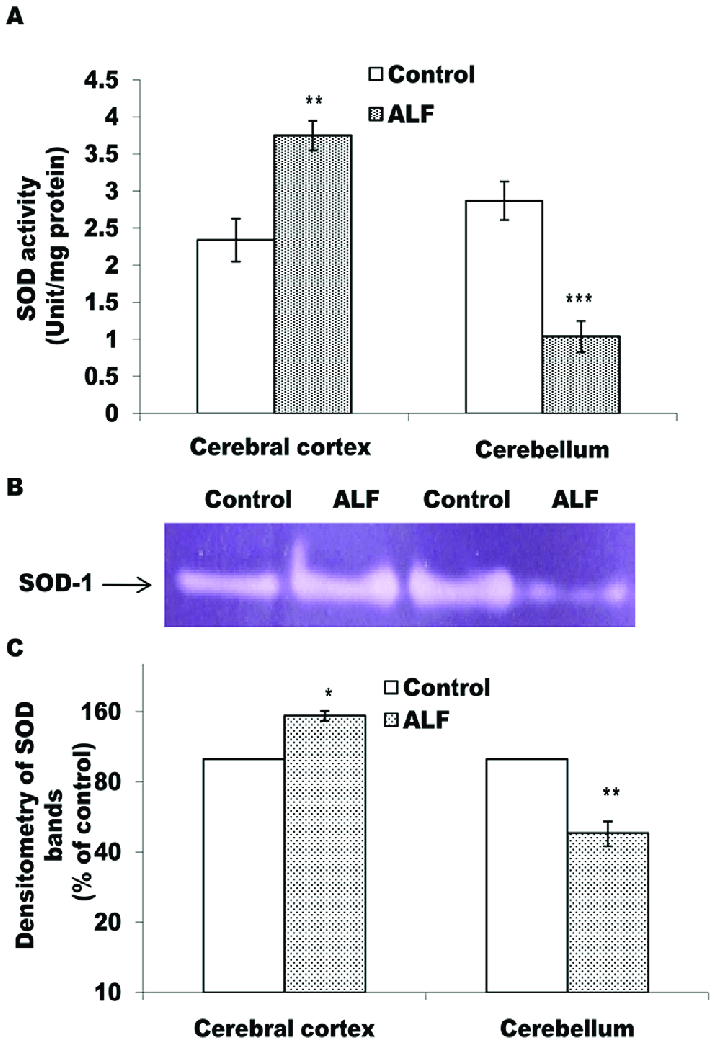 SOD activity shows differential pattern in cerebral cortex and... | Download Scientific Diagram