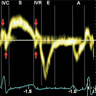 Pulsed Wave Tissue Doppler Velocities Recorded From the ...