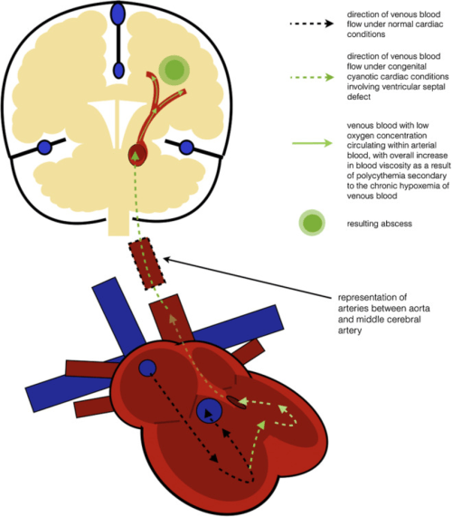 small resolution of pathophysiology of how brain abscesses form in patients with congenital cyanotic heart disease involving ventricular septal