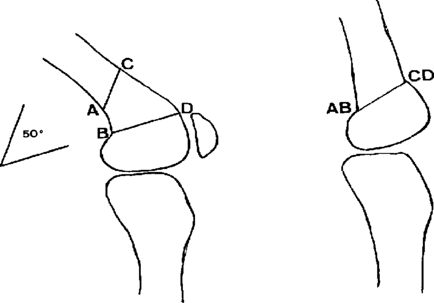 Osteotomy in trapezoid form, for major flexion deformities