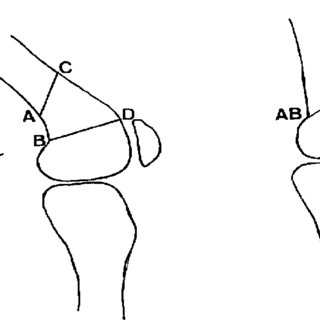 Osteotomy in triangle form, for flexion deformities